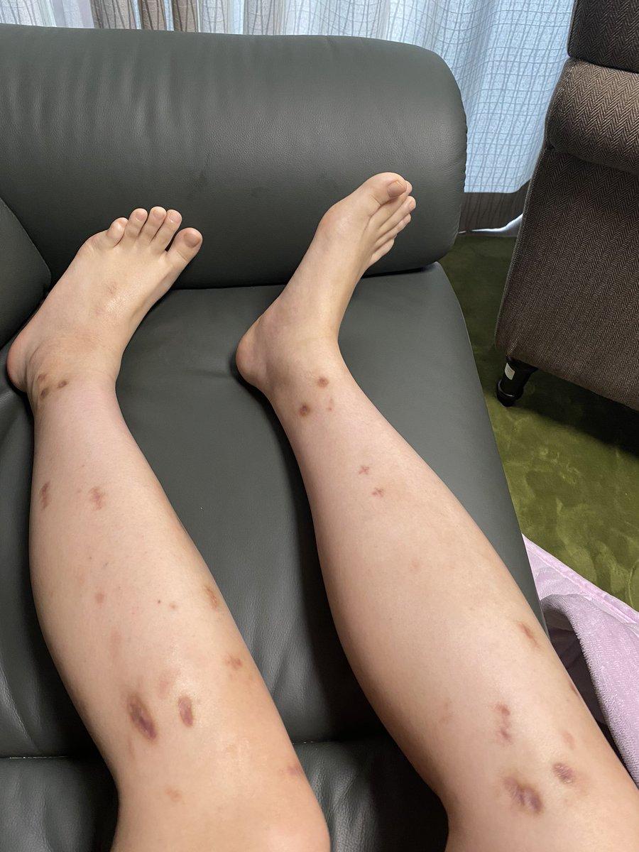 痛み止め コンプ 傷跡 リアルジャックハンマー wwwwに関連した画像-05