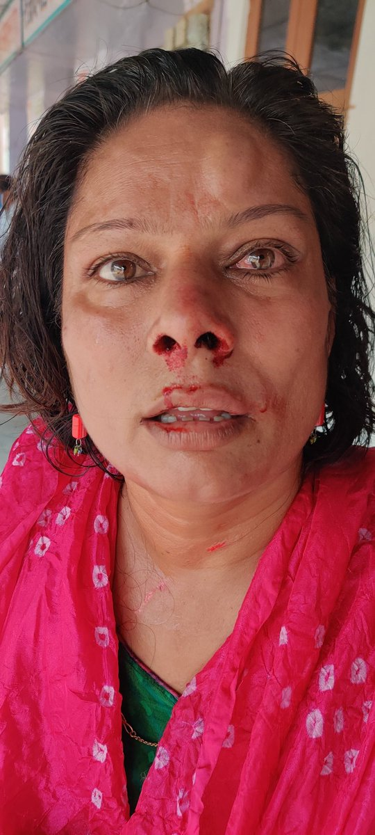 Single women was beaten in front of entire village no one came to help.  @PMOIndia @narendramodi @PIBHomeAffairs @DefenceMinIndia @jaipur_police @PoliceRajasthan @DcpWest @SonuSood @Kangna_Ranaut1 @smritiirani #justice #humanity #women
