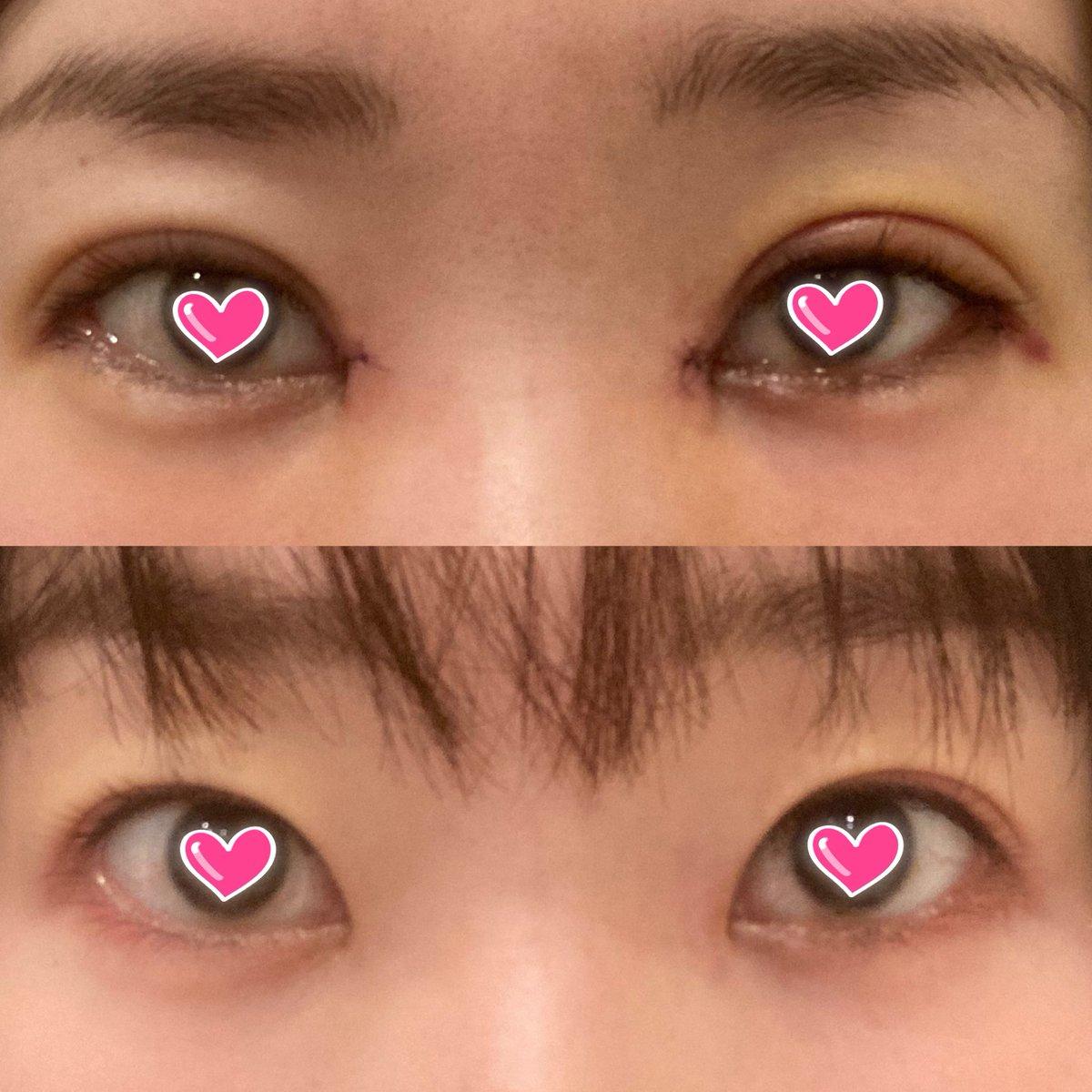test ツイッターメディア - 下が今回の整形前の目なので、ここから森絵梨佳さんの目になりたいって言うのもかなり無理あるよな、、、生きるのつら😭 https://t.co/fvnERrYbge