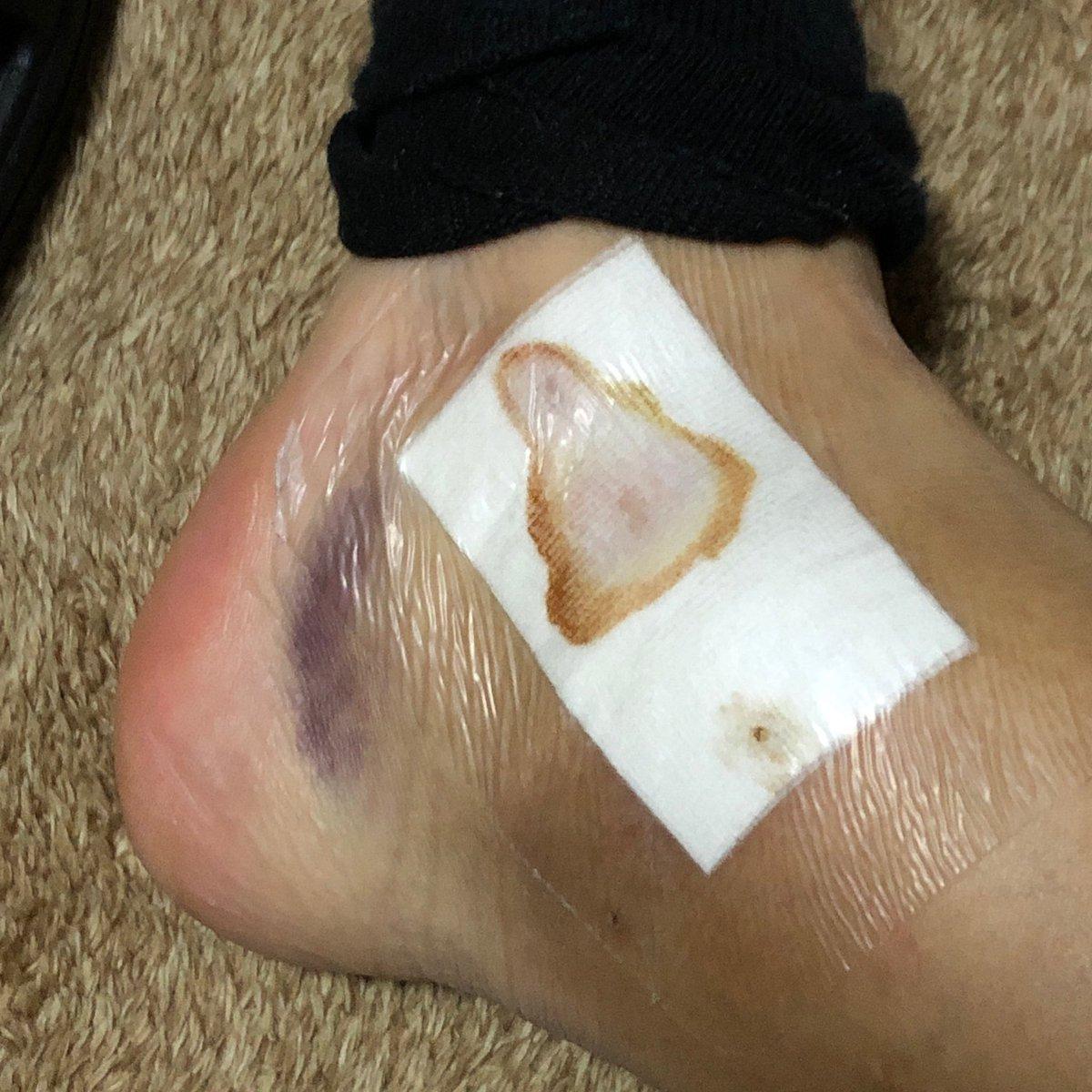 test ツイッターメディア - 閲覧注意 怪我の記録  内出血が表に出てきた腫れは引かずに変わらず😆 痛くても動くから問題なし! https://t.co/gfzdTxGQ5U