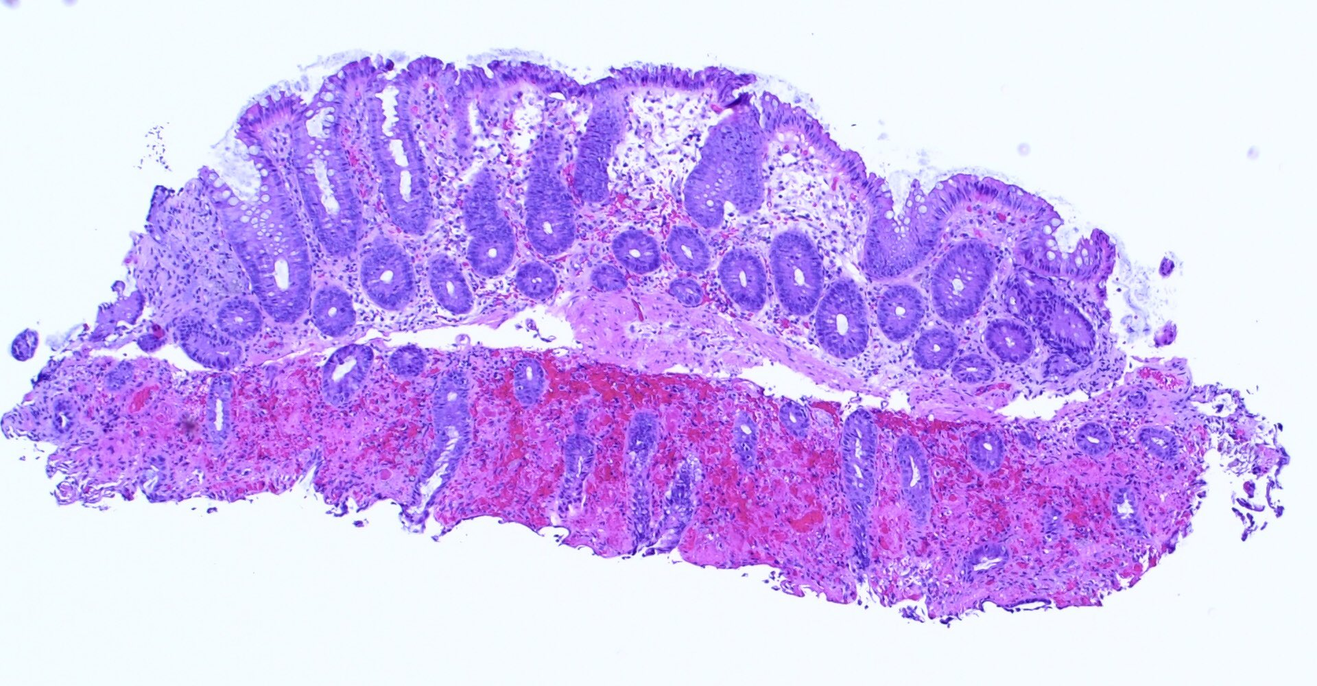 #GIpath Injury Patterns 101  Interesting slide which shows an area of ischemic colitis next to an area of normal colon mucosa.  I thought this was a nice opportunity to show the features of ischemic colitis.  Added some annotations, which may be helpful to those starting out. https://t.co/Oz1YyayixD
