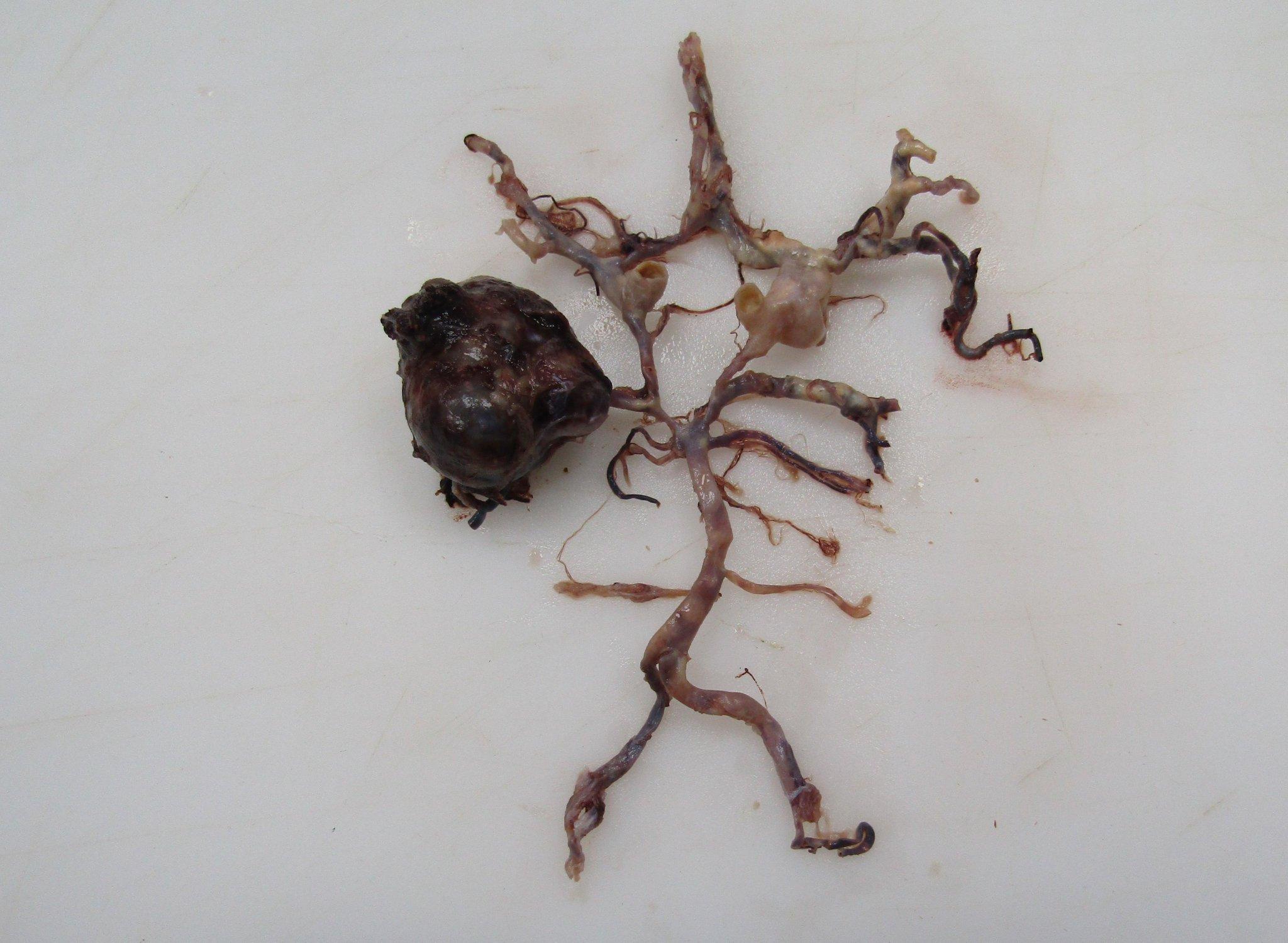 Part of the brain autopsy requires careful examination of the vasculature, although I can see something is wrong 10 feet away...🧐😅  #neuropath #pathtwitter #autopsy @WKemp_MT_FPDoc @yokoda_md @RFecherMD @AnitaArackal @anjuthevirgo @ridin_bk_MD @JMGardnerMD @drjudymelinek https://t.co/fWv2beNK3L