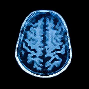 Delirium in the ICU | Social Profile
