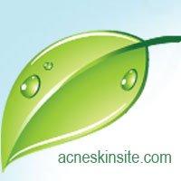 AcneSkinSite