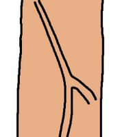 LANGEPENIS2