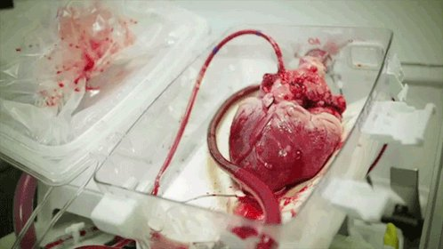 This is how a heart beats out of the body before being transplanted! #Science https://t.co/oFnhhfDPJC