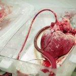 هكذا ينبض القلب: https://t.co/T0QO25FZMl