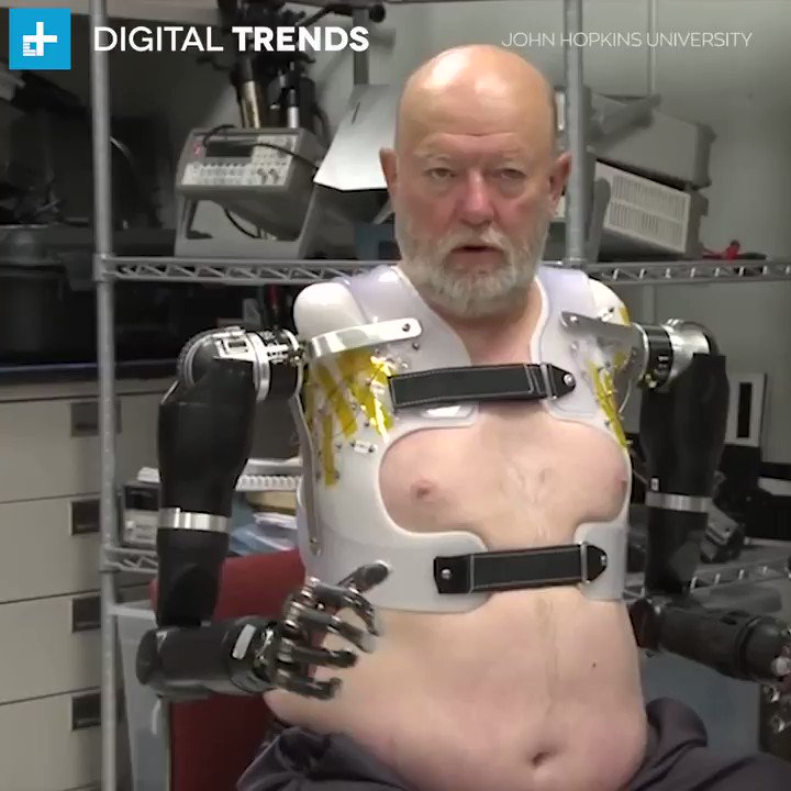 This man is controlling his prosthetics with his minds.
