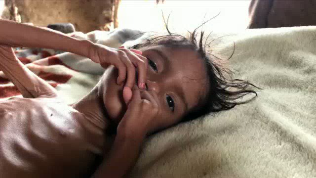 'The vicious mixture that is destroying yemen, is killing her.', haunting report from @BowenBBC and team. #Yemen