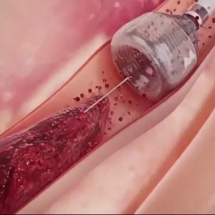 What do you think about this new way to remove blood clots?