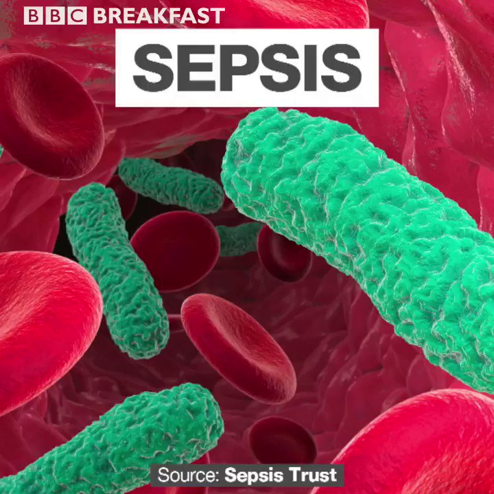 It's #WorldSepsisDay today. Do you know how to spot the signs? ⬇️