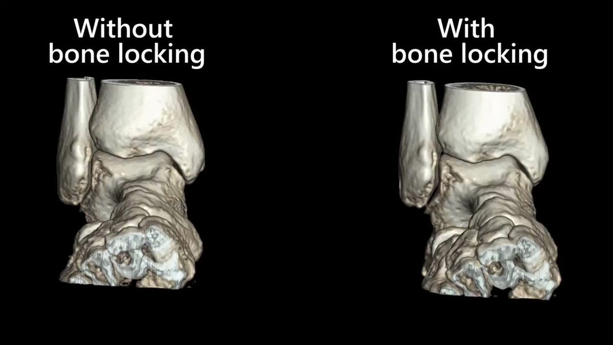 Image for the Tweet beginning: The 4D #Orthopedic Analysis application