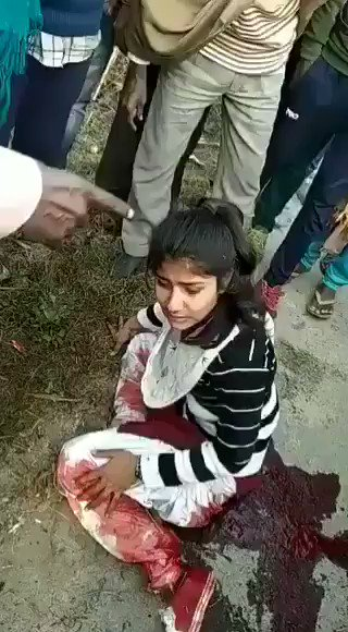 😡HORRIBLE. 😡 This young girl from Yamuna Nagar was shot by a boy 4 rejecting him. She even revealed the name of the boy who shot her, instead of saving her life see how the onlookers r behaving. Who will tell these people that, The sole meaning of life is to serve humanity?