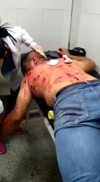 Venezuela🇻🇪: This is just one of many Venezuelan's who have been injured trying to help get humanitarian aid across the border into Venezuela.  Venezuelans are literally having to fight to get the supplies they need to survive. #MaduroMustGo