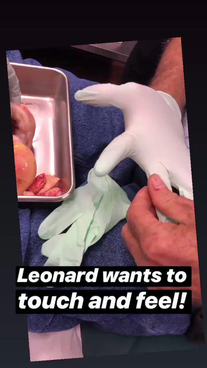 Leonard and Chip #drpimplepopper