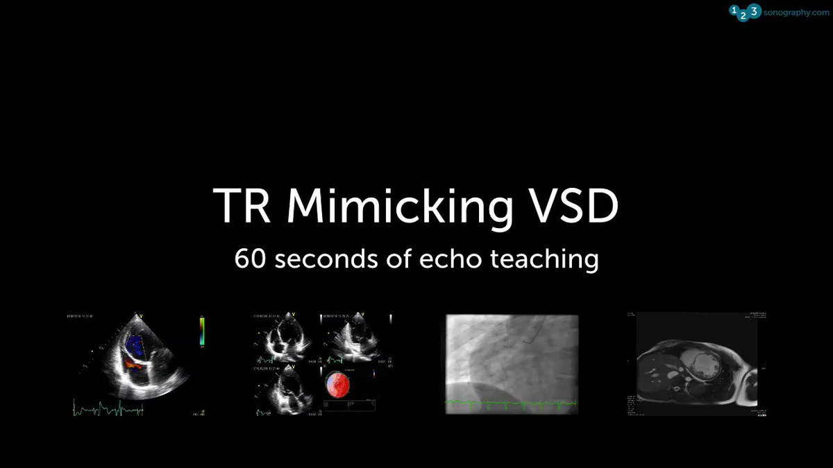 60 Seconds of Echo Teaching Answer: This was NOT a VSD but rather a TR jet - there is no flow convergence zone on the LV side of the IVS as in a VSD. But what is the underlying problem?  #Echocardiology #eLearning #MedicalUltrasound