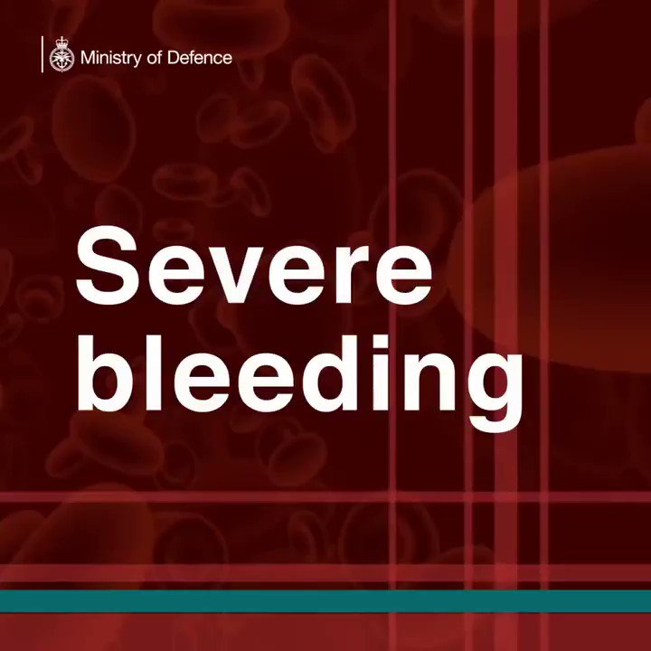Watch this video about the new technology being developed by some of our Military Doctors and Scientists to stop rapid blood loss on the battlefield. #innovation #cuttingedge