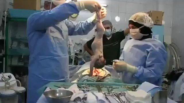 Doğum sırasında kalbi duran bebeğin, hayata döndürüldüğü muhteşem anlar... https://t.co/BetkvFacAE