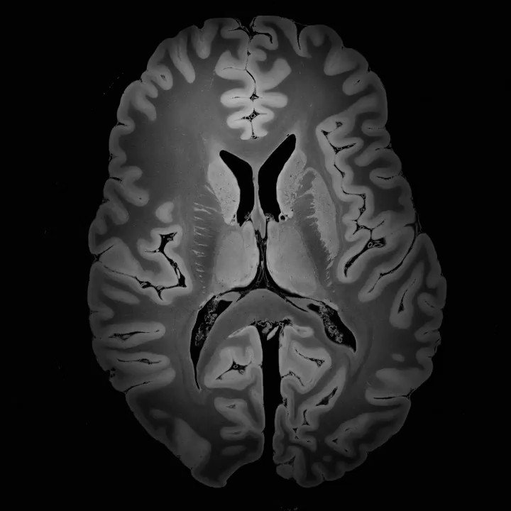 We are proud to release a 100 micron MRI scan of the human brain. Preprint on http://biorxiv.org/cgi/content/short/649822v1 …. Videos on https://www.youtube.com/playlist?list=PLlL7CEMX5bxzl1TqkJRK3pMV4Ax6By4bN ….  Dataset will be available in native space and MNI space at http://www.datadryad.org  and integrated into http://www.lead-dbs.org .  [1/2]