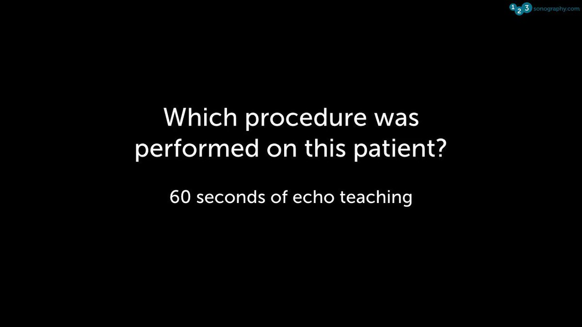 60 Seconds of Echo Teaching Question: Can you tell which procedure was performed on this patient?  ▶️ Have you seen our diploma course? Sign up here: https://www.123sonography.com/echo-ultrasound         #Echocardiology #eLearning #MedicalUltrasound