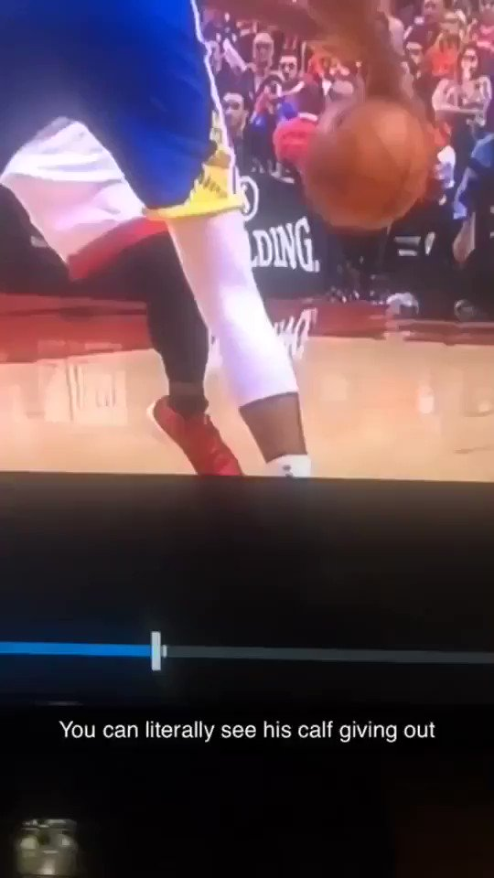 It looked like a gunshot went off in KDs calf.