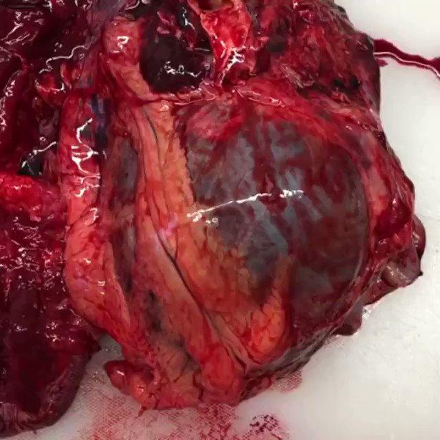 Impresionante vídeo que muestra el efecto de la acumulación de la sangre en pericardio debido a un taponamiento cardíaco masivo.   Vía: http://bit.ly/MedicalShots