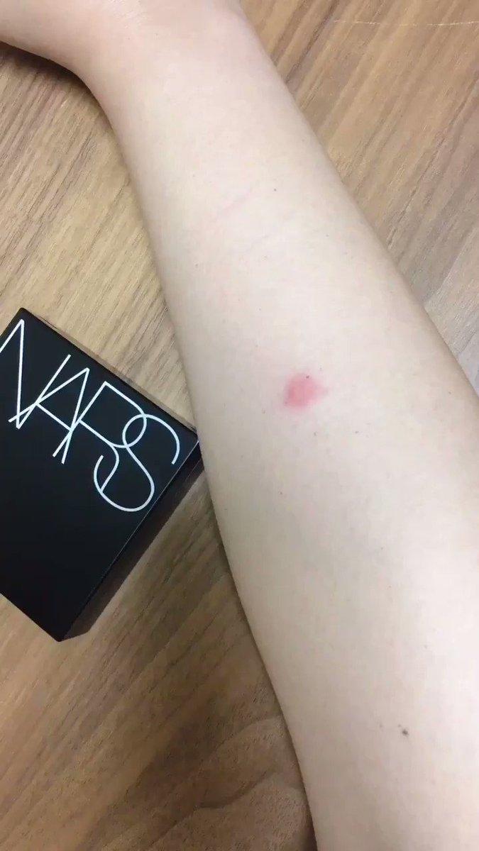 ちょっと見てNARSのクッションファンデvs腕の虫刺され