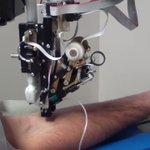 自動採血ロボットがすごそう!近い将来に実用化される日が来るかも?