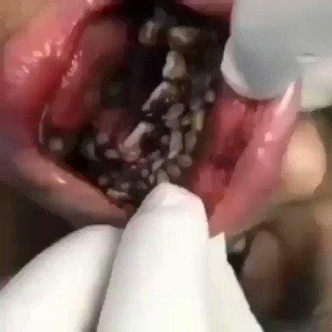 miasis genital en humanos