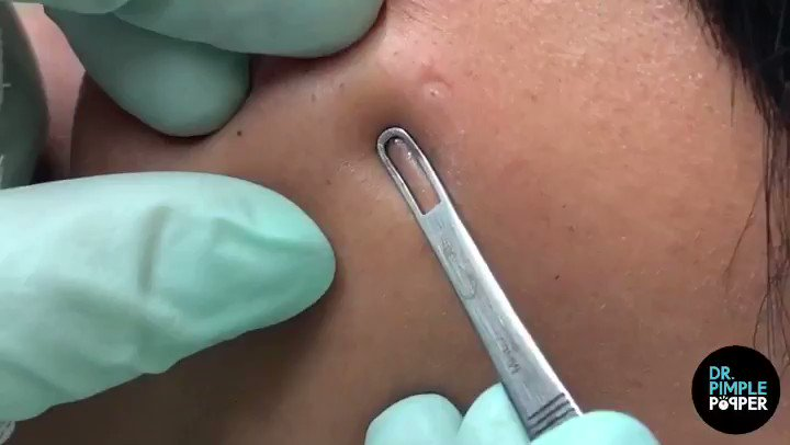 Dr Pimple Popper - @SandraLeeMD Twitter Profile and