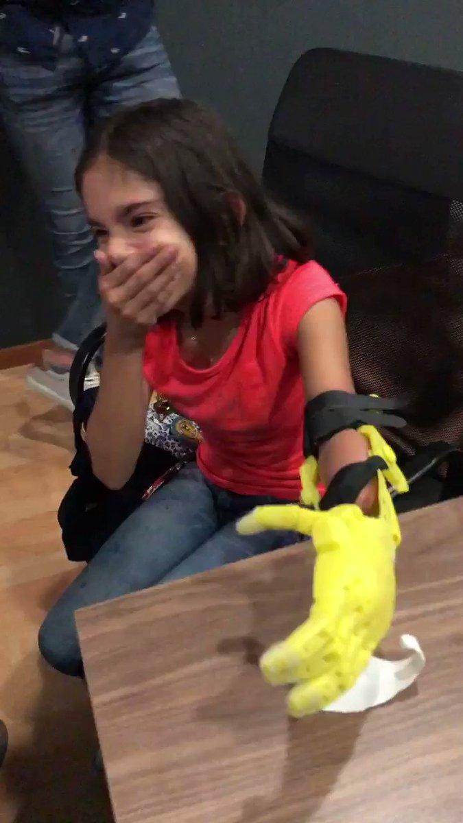 Amigos Twitteros, hace un año inicie un sueño - proyecto de hacer prótesis de bajo costo para niños. Hoy, gracias a los que creyeron en el proyecto, pusimos la primera.