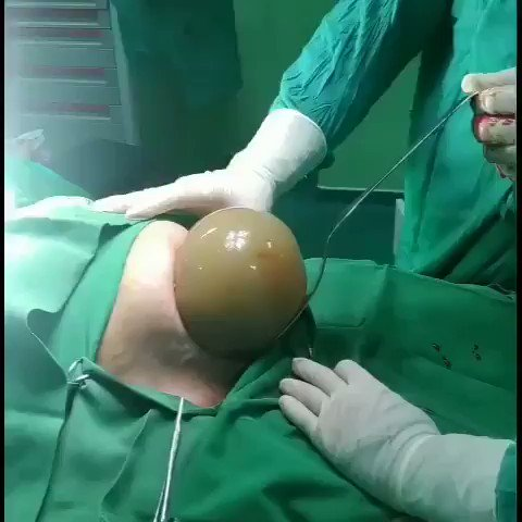 Idk what I expected but this isn't what I imagined a Caesarean delivery to look like