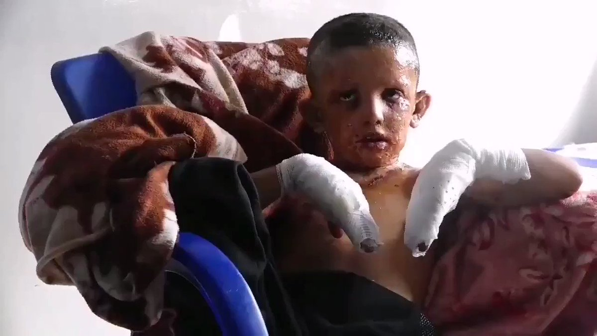 The experts are investigating the use of prohibited phosphorus bombs in Serêkaniyê by Turkey.  Here is footage of the injured civilians  from Serêkaniyê who are now in the Wetenî Hospital in Hesekê.  #NorthSyria #Rojava #Kurds #TurkishWarCrimes