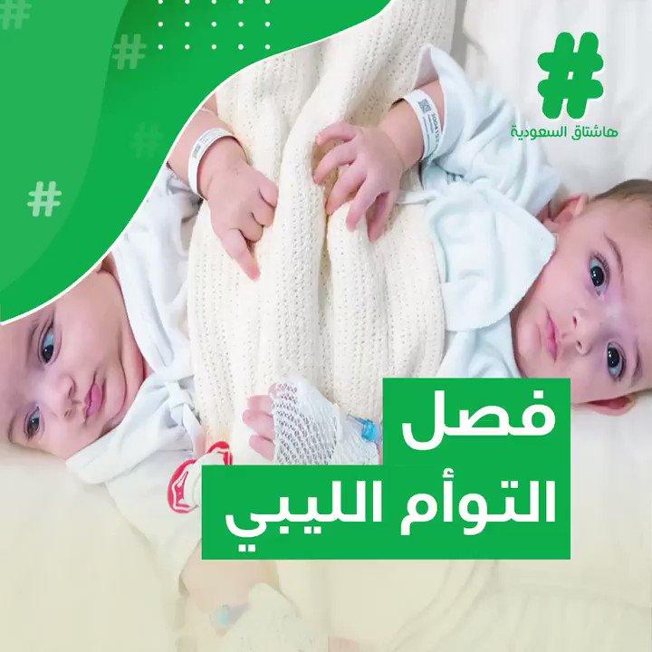أحمد & محمد .. افترقا جسداً..وبقيا روحاً ..#قصة_هاشتاق#فصل_التوأم_السيامي_الليبي