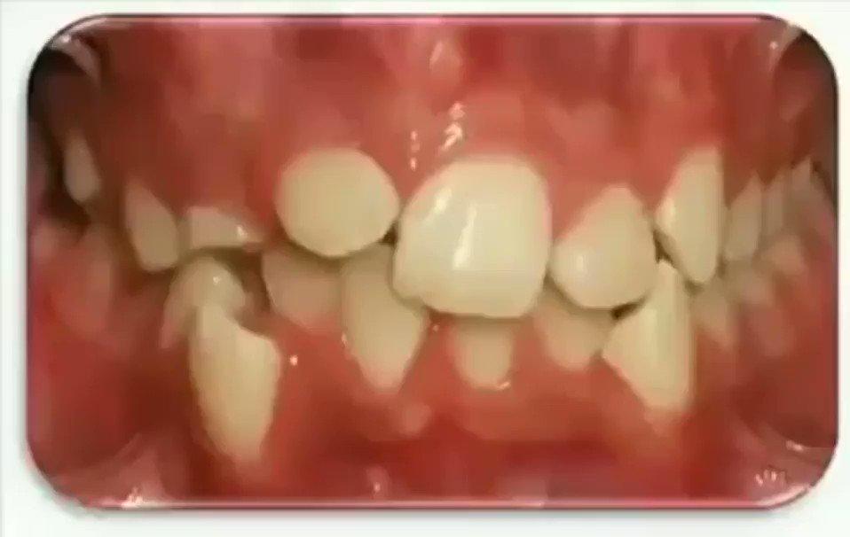 وش ممكن يسوي تقويم الاسنان #ابداع