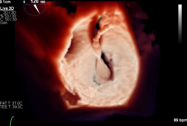 Engaging the mitral valve for valvuloplasty...