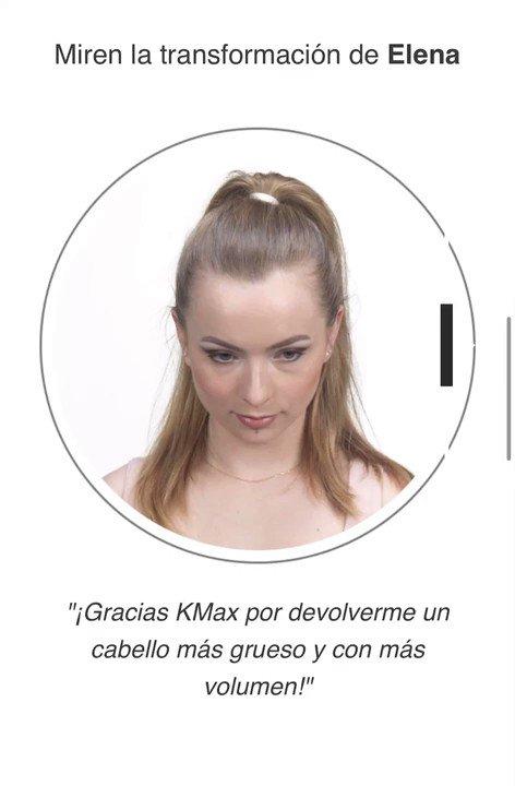Sorprendente el cambio de Elena con las fibras capilares Kmax . . . #kmax #kmaxespaña #fibrascapilaresa #hairfibers #calvicie #alopecia #disimularcalvicie