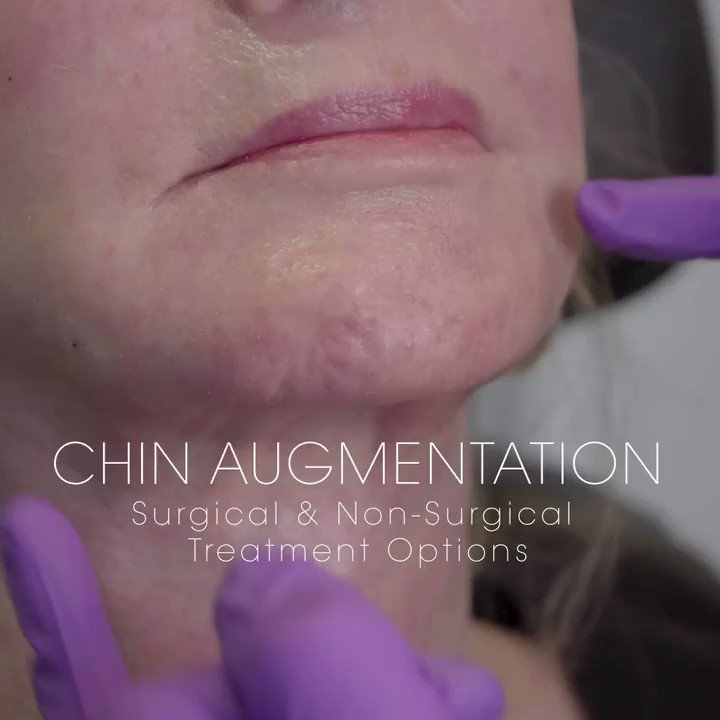 There are several ways to hydrate, contour and rejuvenate the appearance of a chin. When performing #chinaugmentation, I assess the patient's concerns and anatomical features and discuss the different options that are available for them to achieve their aesthetic goals. https://t.co/8IUs67CaLP