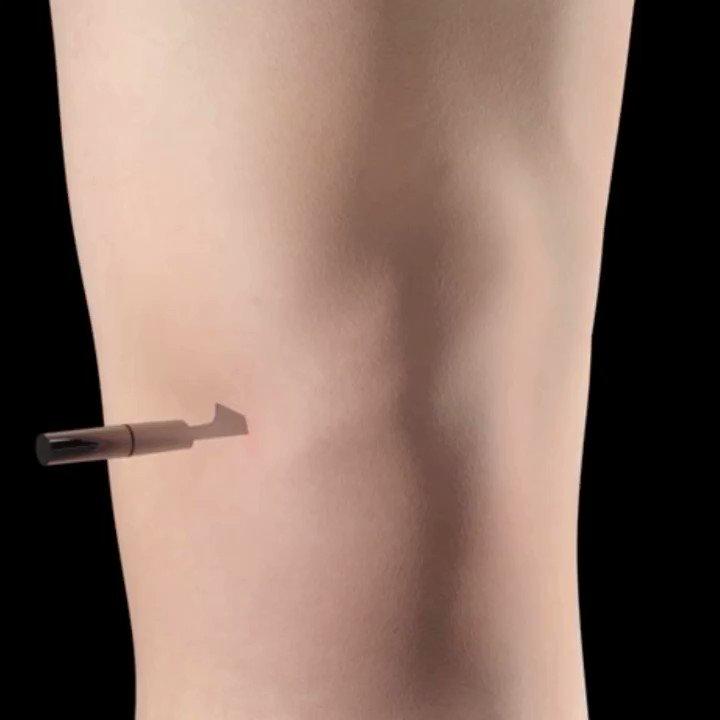 Cirugía reparadora de menisco Image courtesy of Complete Anatomy Thanks to @3D4Medical