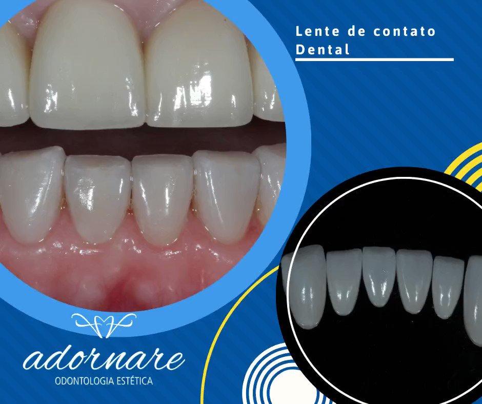 Transforme seu sorriso e seja feliz!  As Lentes de Contato Dental são uma das melhores opções para transformar seu sorriso de forma simples, minimamente invasiva e rápida. #dicas #estetica #odontodicas #odonto #sorria #felicidade #alegria #dentista #vida #amor #sorrisopic.twitter.com/dwEtZ7WUFH