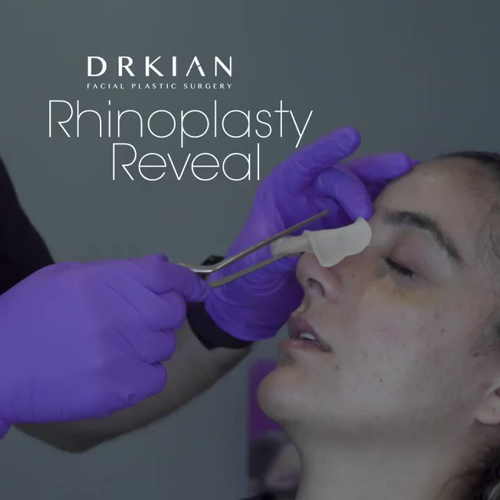 """If I'm this happy today, I can't imagine how happy I'm going to be in a week!""   #rhinoplasty #rhinoplastybeforeandafter #nosebydrkian https://t.co/lYr7Gl6q61"