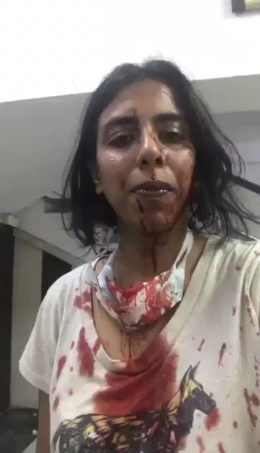 "Neighbourhood Woof volunteer Ayesha & her team who work day n night defending #animalsrights wre brutally tortured-result of Hinduvta ideology that breeds hatred & legitimises violence against ""rights grps"" in India. Civil society must stand up to Modi inspired fascist militants"