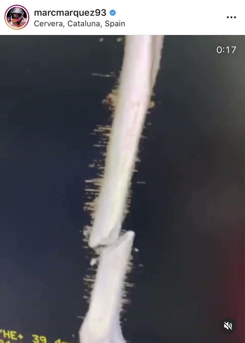😱😱😱😱😱  🏥 @marcmarquez93 muestra las imágenes de la radiografía su brazo roto antes de pasar por el quirófano  📺 #Golazo https://t.co/WcYs6IwDN9