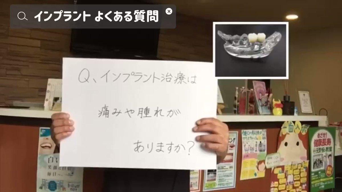 【インプラント  よくある質問】#香川県 #高松市 #はる歯科診療室 #予防歯科 #インプラント #歯周治療