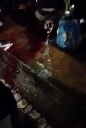 Aquí les informamos. Lamentablemente se confirma la muerte del joven el cual fue impactado con un objeto en su cabeza en la localidad de suba en Bogota, al parecer no pudo aguantar la pérdida de sangre y falleció ,lamentamos su pérdida.  Fuente :Resistencia  #ParoNacional23J https://t.co/CavCLvnh8G
