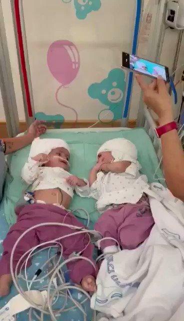 لحظات مثيرة للعاطفة بعد ما تم فصل الرضيعتين التوأم من الرأس في عملية الأولى من