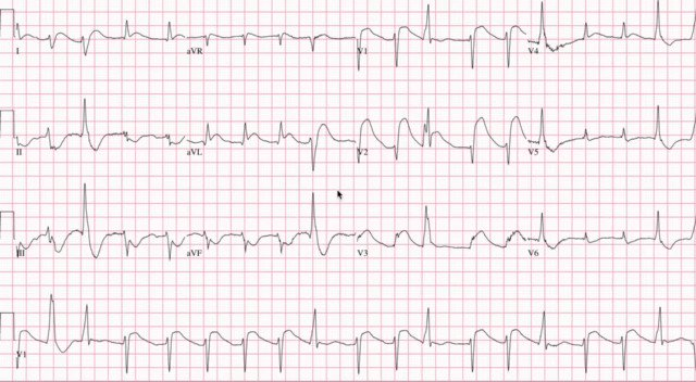 Here's a video I made breaking down this great post Cardiac Arrest #ECG   #FOAMed