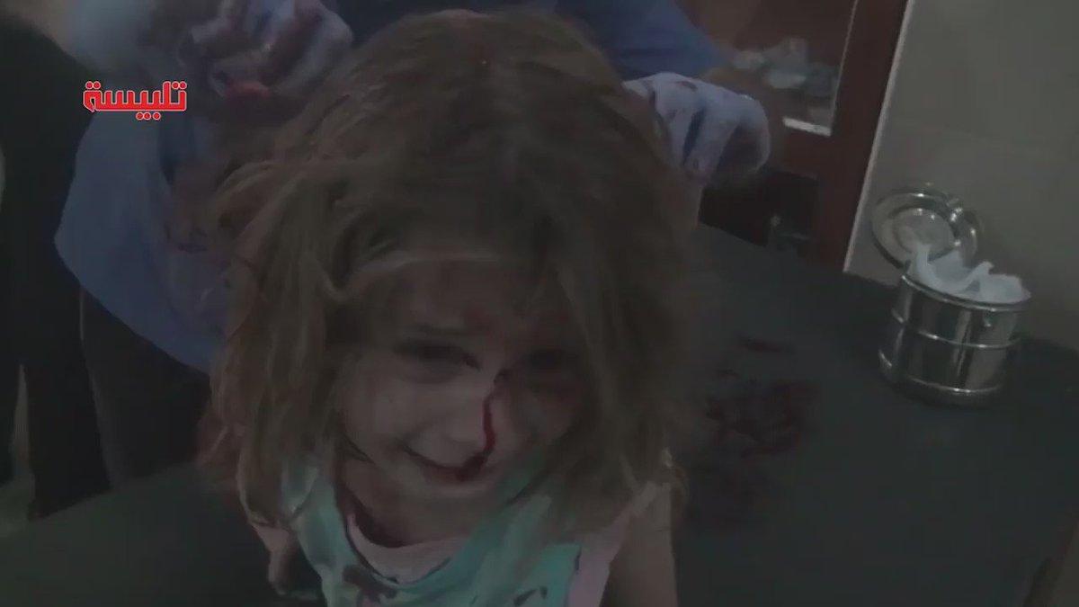 zeigen was ist aber dieses video der verletzten weinenden aya ist sehr sehr schwer zu. Black Bedroom Furniture Sets. Home Design Ideas