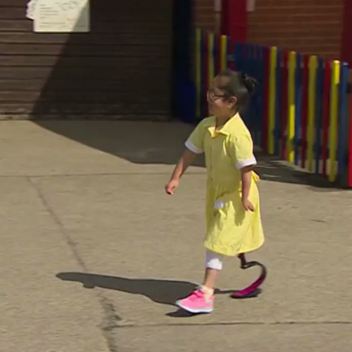 The best news story today is this little girl called Anu showing her friends her new foot. Watch. https://t.co/9bzxJv8Z81