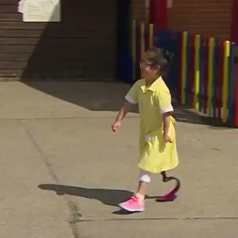 7 yaşındaki küçük kız, sporcu proteziyle ilk kez gittiği okulunda arkadaşları tarafından harika şekilde karşılanıyor. ❤🙏